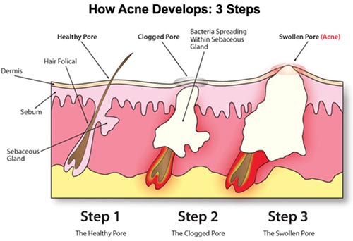 Acne Treatment NYC
