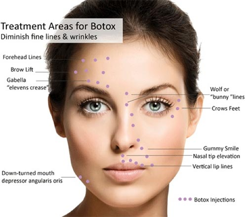 Botox Injections · 2018 Top Dermatology Doctor