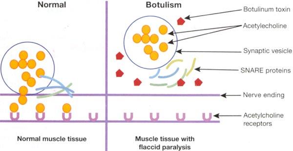 Botulinum Toxin · Dermatologist NYC