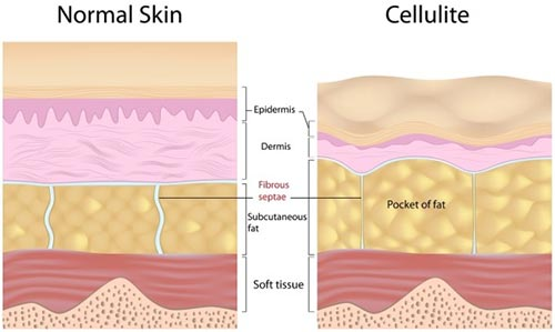 Cellulite Removal · Dermatologist NYC