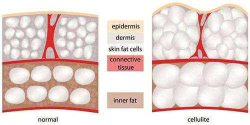 Cellulite Treatment · Dermatologist NYC