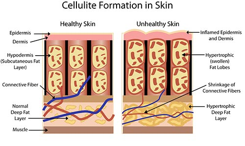 Cellulite Treatment A� Laser Dermatologist NYC
