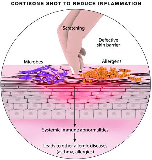 Cortisone Shots · Dermatologist NYC