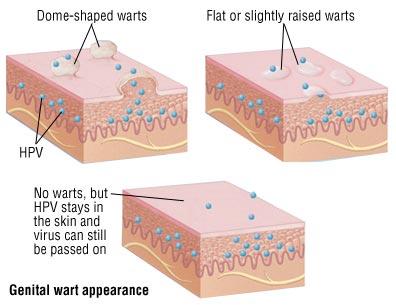 Genital Warts · Dermatologist NYC