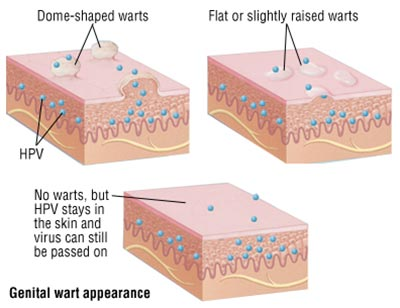 Genital Warts Treatment NYC