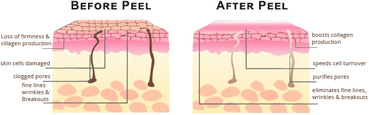 Glycolic Acid Peel Specialist · 2020 Top Rated Laser Dermatologist in NYC