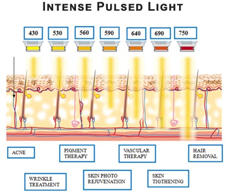Intense Pulsed Light · Dermatologist NYC