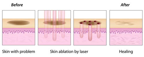 Laser Stretch Mark Removal NYC