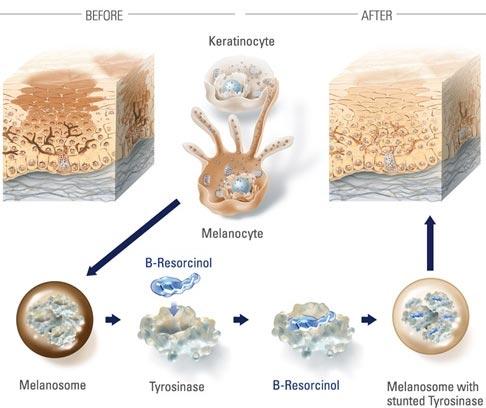 Melasma A� Laser Dermatology NYC
