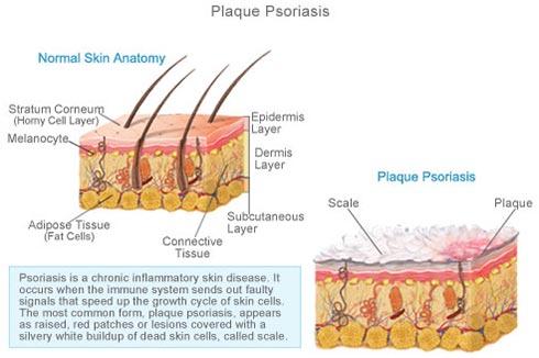 Plaque Psoriasis · Dermatologist NYC