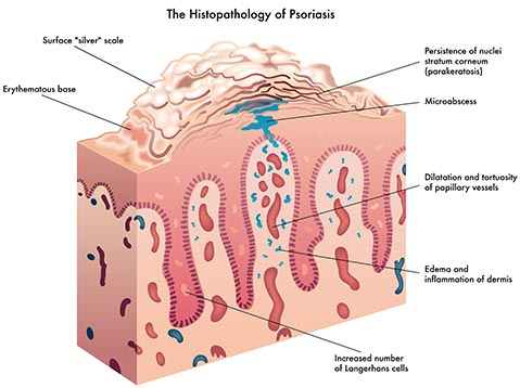 The Histopathology of Psoriasis