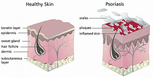 Psoriasis Treatment Dermatologist NYC