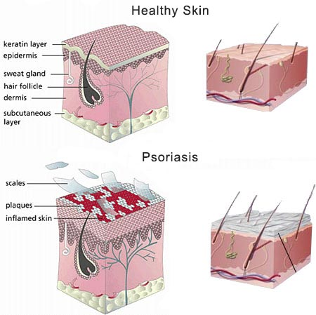 Scalp Psoriasis · Dermatologist NYC