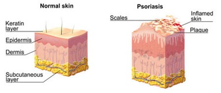 Scalp Psoriasis Treatment NYC