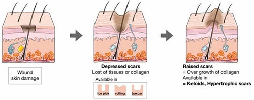 Scar Removal NYC
