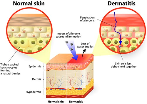 Seborrheic Dermatitis Treatment · Dermatologist NYC