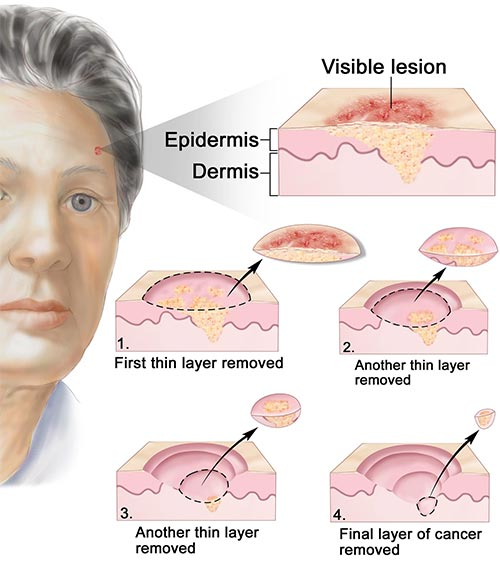 You treatments for facial skin cancer excellent