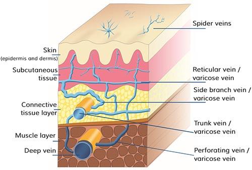 Spider Veins Dermatologist NYC