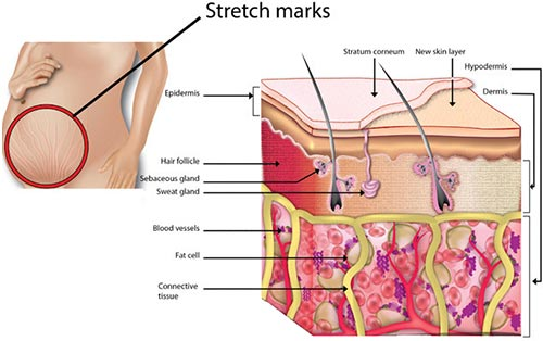 Stretch Marks A� Dermatologist NYC