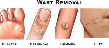 Wart Removal · Dermatologist NYC