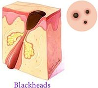 Blackheads Acne Dermatology Manhattan NYC