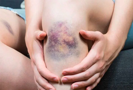 bruise treatment